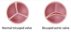 aortic valves