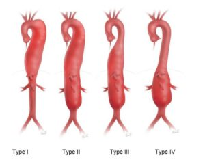 Thoracoabdominal Aortic Aneurysm